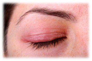 Blepharitis-480w