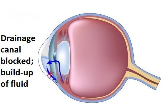 Glaucoma-Eye12-1440w