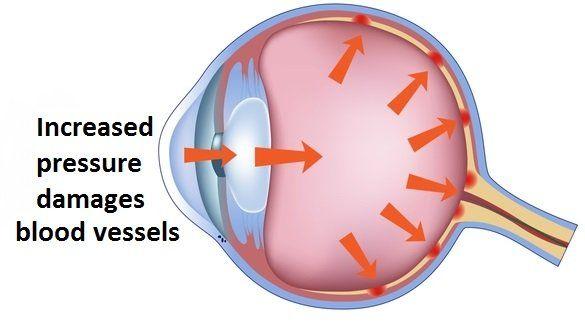 Glaucoma-Eye22-1440w