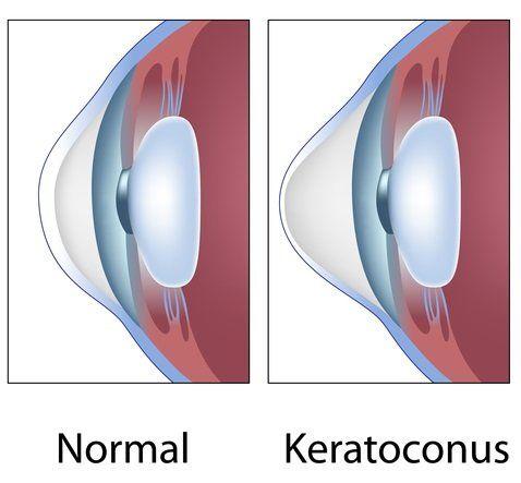 Keratoconus-final-480w