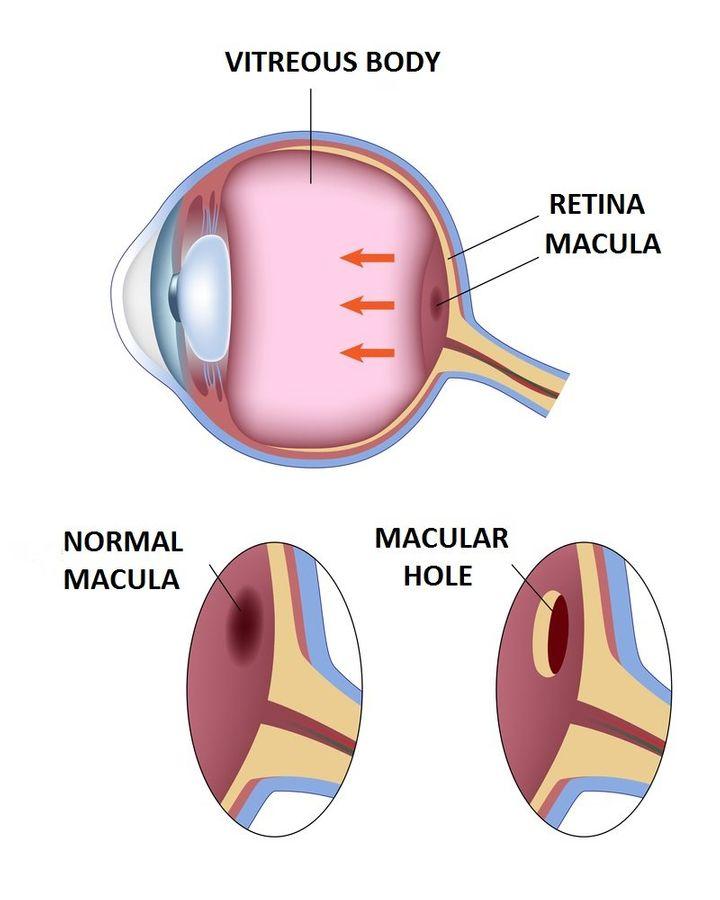 Macular-Hole1-720w
