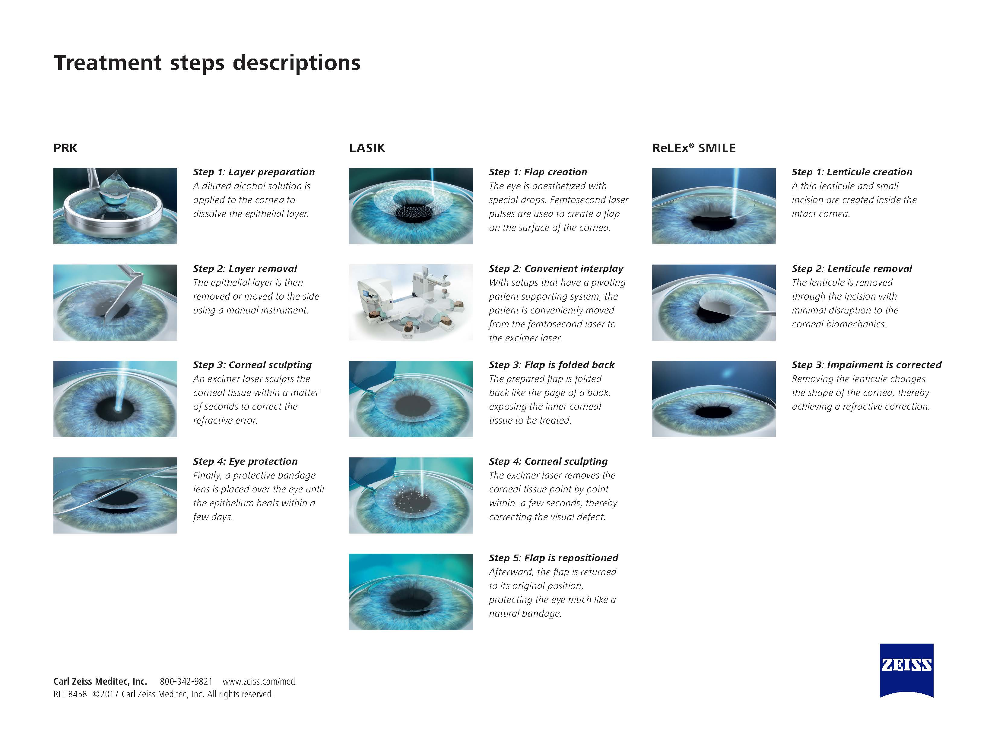 PRK-LASIK-SMILE---Treatment-Steps-2