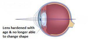 Presbyopia--1920w