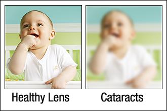 healthy-lens-cataractsjpg